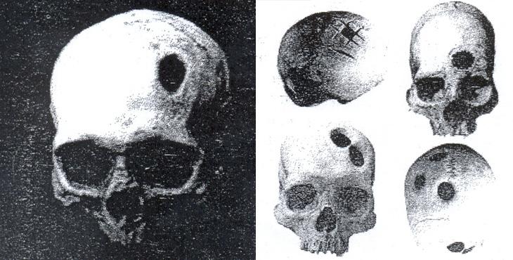 О трепанации черепа на территории древнего Азербайджана